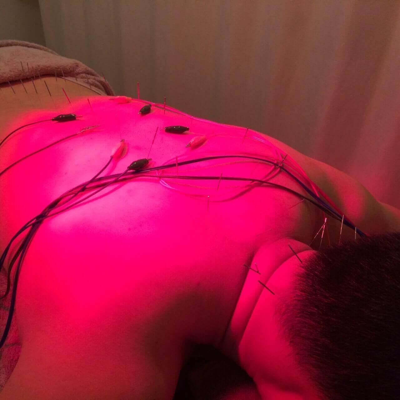 鍼治療の効果で肩こりも血流も改善!気になる針や電気の痛みについても紹介